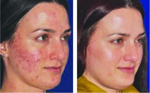 Microneedling Before & After: Acne & Acne Scarring