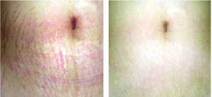 Microneedling Before & After: Stretch Marks